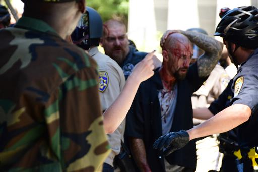 Police escort a wounded man away from the Capitol in Sacramento on Sunday after members of right-wing extremists groups holding a rally  there clashed with counterprotesters. (AP Photo/Steven Styles)